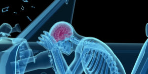 personal injury law - TBI traumatic brain injury