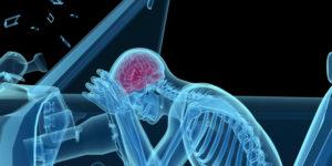 personal injury law - TBI traumatic brain injury